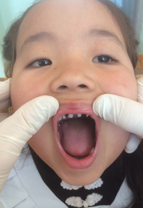 mongolian childs teeth in Mongolia with Pediatric Dentist from Fort Lee and Westwood, NJ